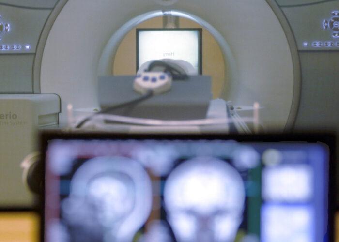 Logran 'borrar' los recuerdos de miedo y aversión con estimulación transcraneal del cerebro