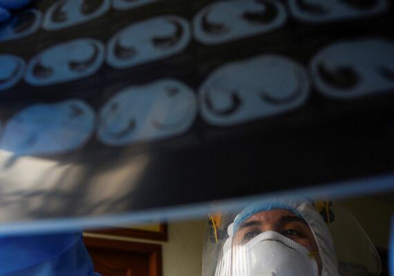 Médicos mexicanos realizan el primer trasplante doble de pulmón a un paciente que contrajo coronavirus