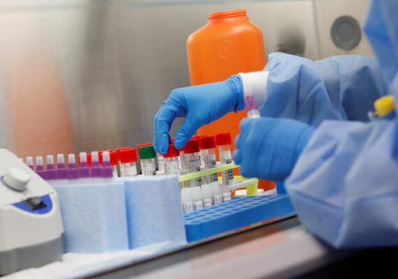 Un hospital de Florida afirma haber desarrollado un protocolo de fármacos que ayuda a evitar la UCI y las muertes en pacientes con covid-19